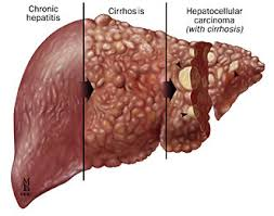 Hepatitis C pathology